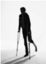 Providing Temporary Accommodations for Employee Disability